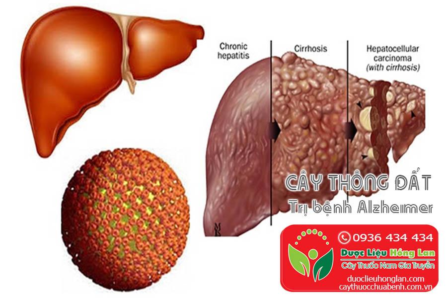 CAY-THONG-DAT-TRI-BENH-Alzheimer-CTY-DUOC-LIEU-HONG-LAN