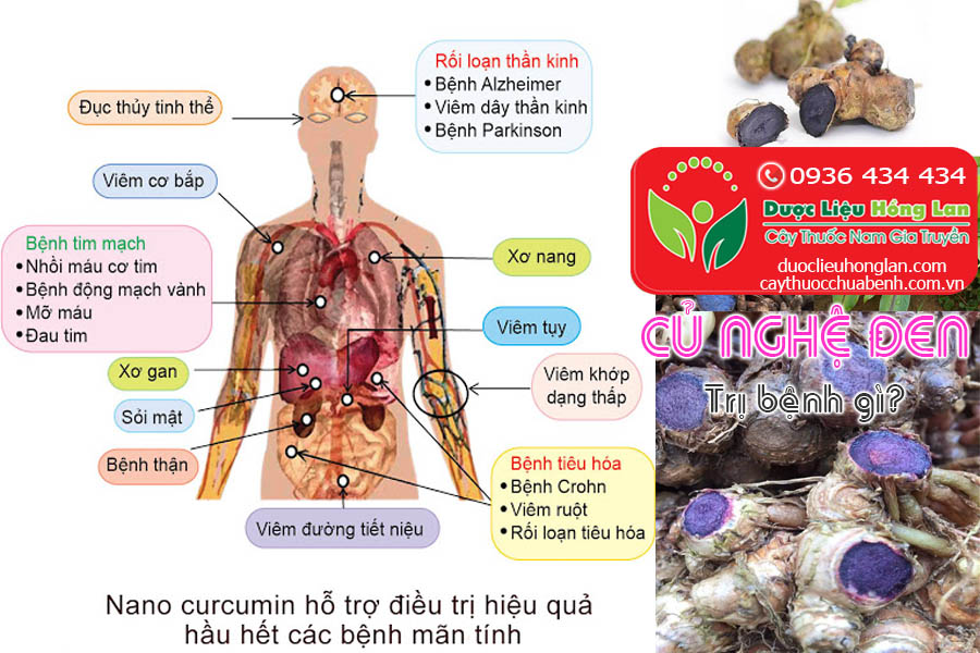 CU-NGHE-DEN-CHUA-BENH-GI-CTY-DUOC-LIEU-HONG-LAN