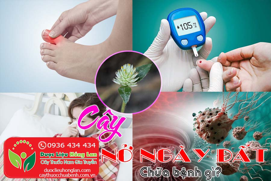 CAY-NO-NGAY-DAT-CHUA-BENH-GI-CTY-DUOC-LIEU-HONG-LAN