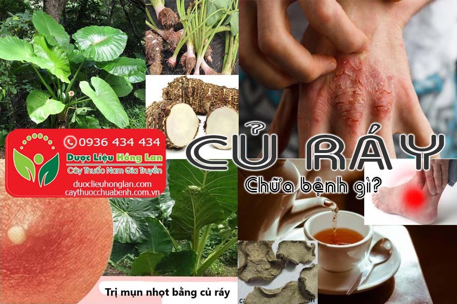 CU-RAY-CHUA-BENH-GI-CTY-DUOC-LIEU-HONG-LAN