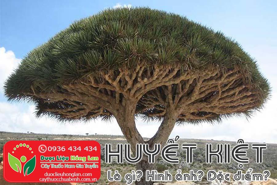 HUYET-KIET-LA-GI-HINH-ANH-DAC-DIEM-SONG-O-DAU-CTY-DUOC-LIEU-HONG-LAN